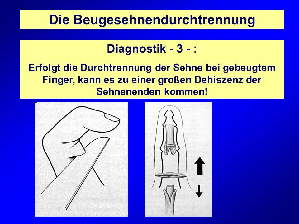 Die Beugesehnendurchtrennung Diagnostik - 3 - : Erfolgt die Durchtrennung der Sehne bei gebeugtem Finger, kann es zu einer großen Dehiszenz der Sehnen