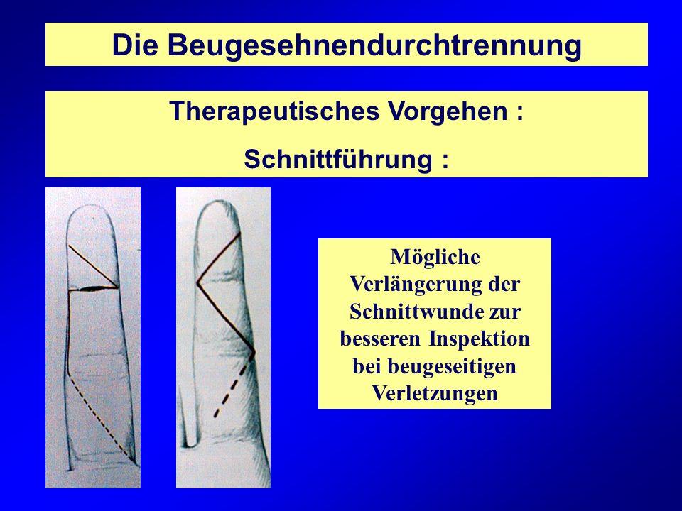 Die Beugesehnendurchtrennung Therapeutisches Vorgehen : Schnittführung : Mögliche Verlängerung der Schnittwunde zur besseren Inspektion bei beugeseiti