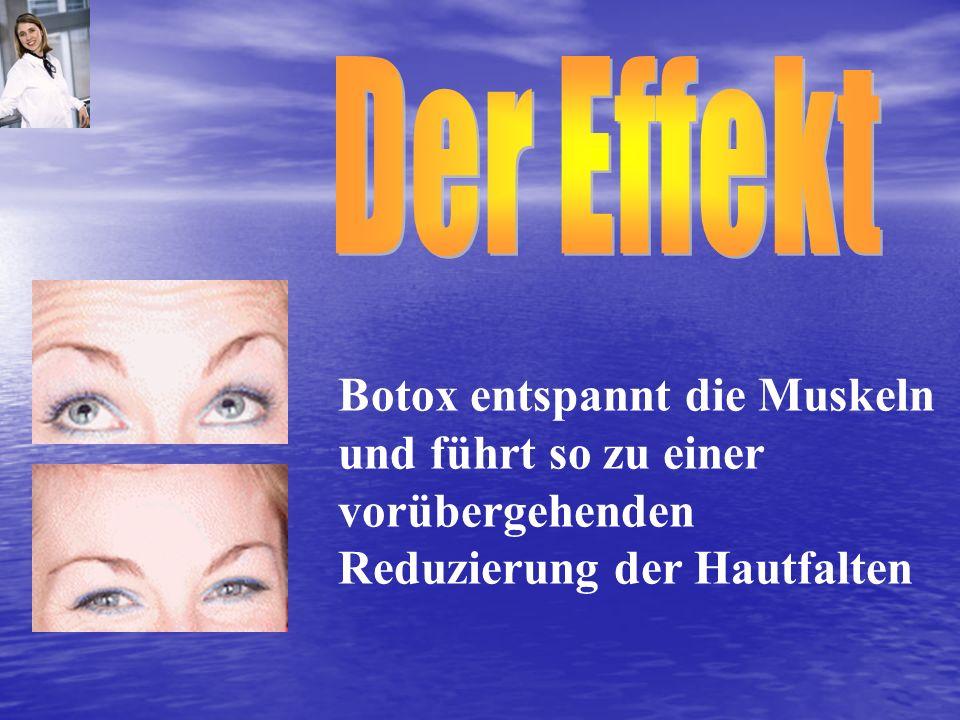 Botox entspannt die Muskeln und führt so zu einer vorübergehenden Reduzierung der Hautfalten