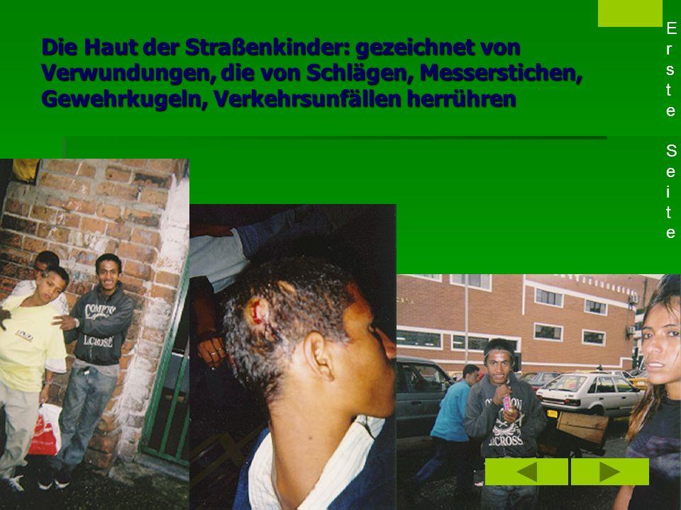 Lesen der Narbenschrift 1. Straßenkinder: Zugang über den Körper - Narben auf der Haut - Mitteilungsdrang 1. Straßenkinder: Zugang über den Körper - N