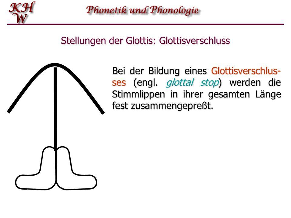 Stellungen der Glottis: Glottisverschluss Bei der Bildung eines Glottisverschlus- ses (engl. glottal stop) werden die Stimmlippen in ihrer gesamten Lä