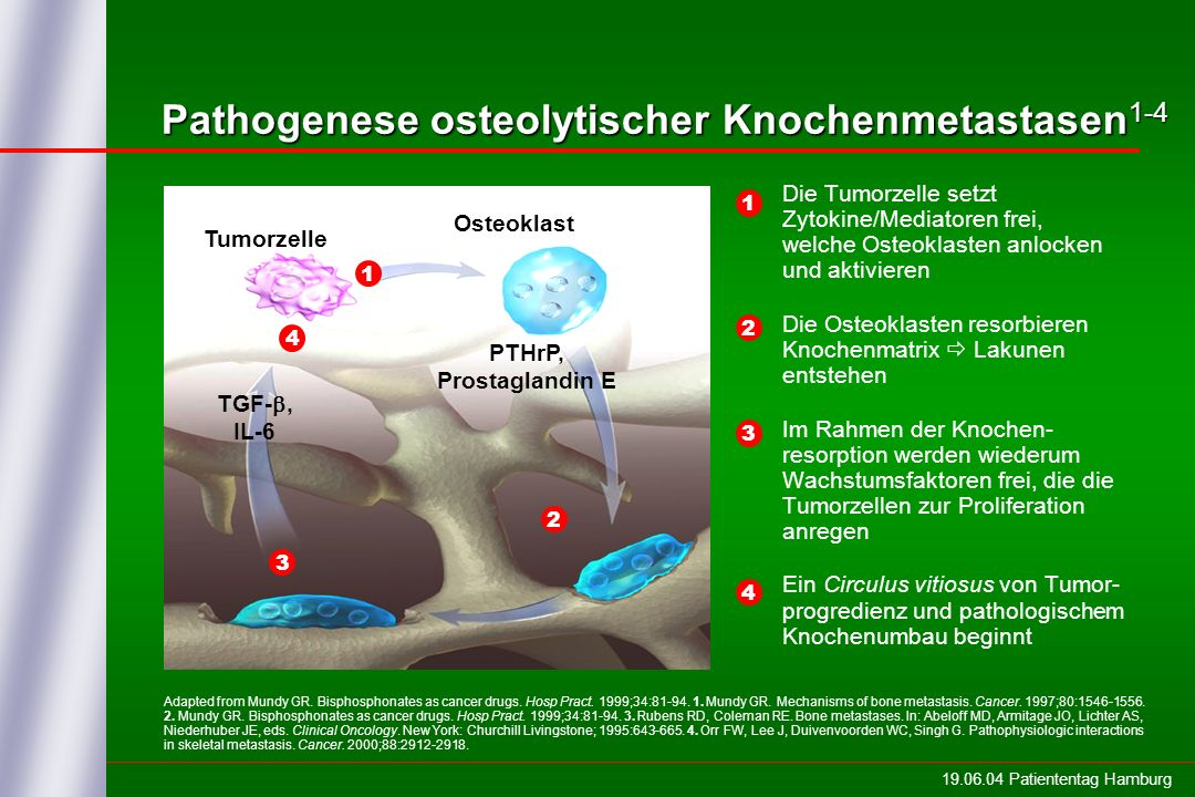 19.06.04 Patiententag Hamburg Pathogenese osteolytischer Knochenmetastasen 1-4 Tumorzelle Osteoklast TGF-, IL-6 PTHrP, Prostaglandin E Adapted from Mundy GR.