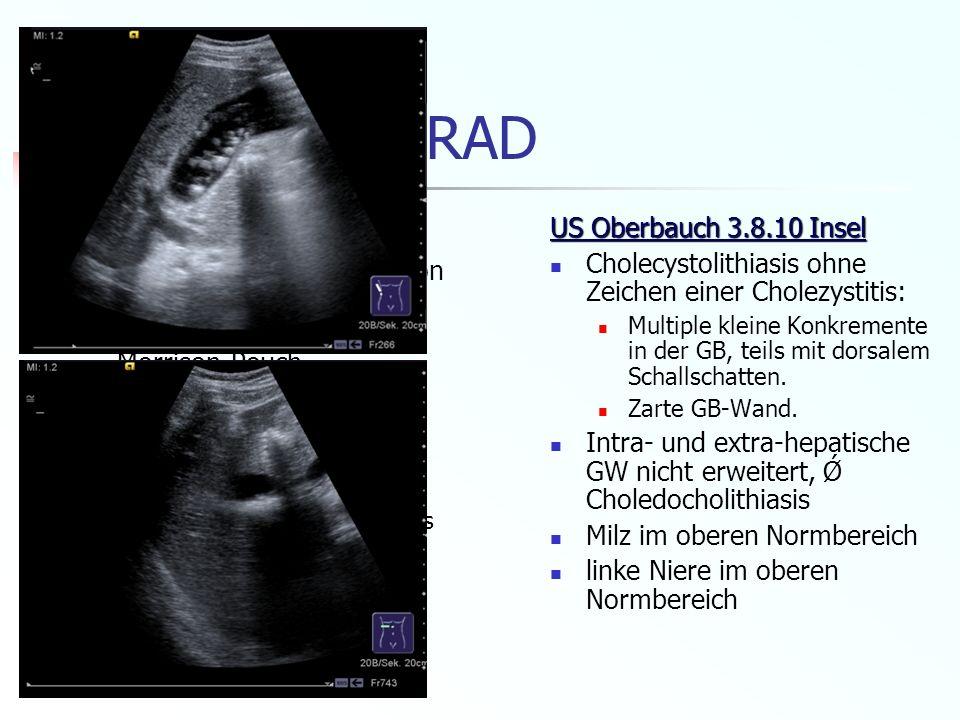 Frau E.K. - RAD CT 28.7.10 HUG Pneumoperitoneum i.R. von St. n. Sectio Wenig freie Flüssigkeit im Morrison-Pouch Pankreas Pankreas vom normalen Aspekt