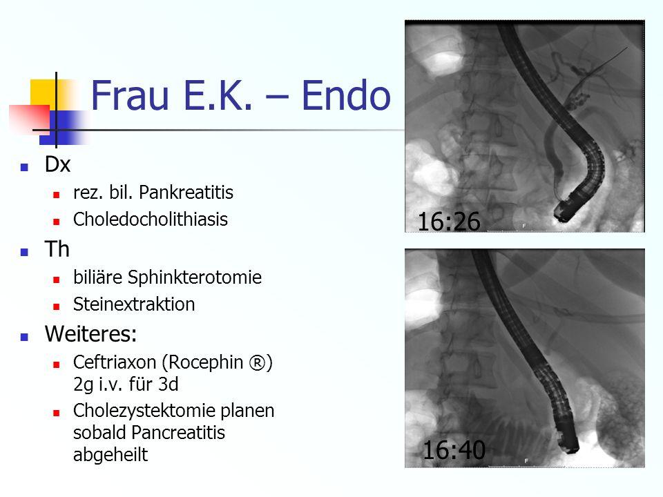 Frau E.K. – Endo (ERCP) (3.8.10) Dx rez. bil. Pankreatitis Choledocholithiasis Th biliäre Sphinkterotomie Steinextraktion Weiteres: Ceftriaxon (Roceph