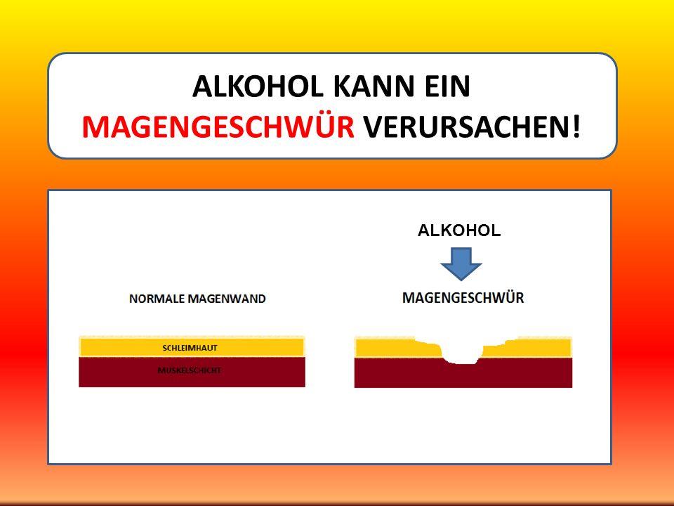 ALKOHOL KANN EIN MAGENGESCHWÜR VERURSACHEN! ALKOHOL