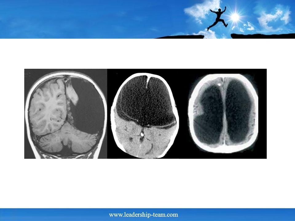 www.leadership-team.com Kinder und Erwachsenen Gehirne Bei Neugeborenen ist das Gehirn nur rund 350 g schwer, bei Erwachsenen dagegen im Durchschnitt 1400g.