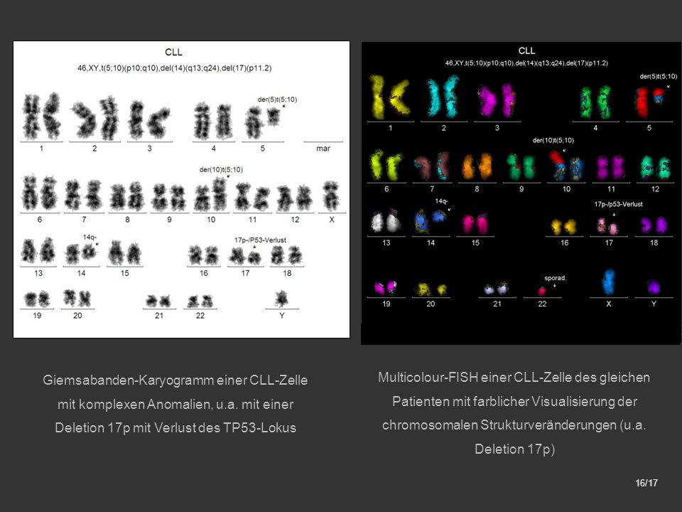 Giemsabanden-Karyogramm einer CLL-Zelle mit komplexen Anomalien, u.a.