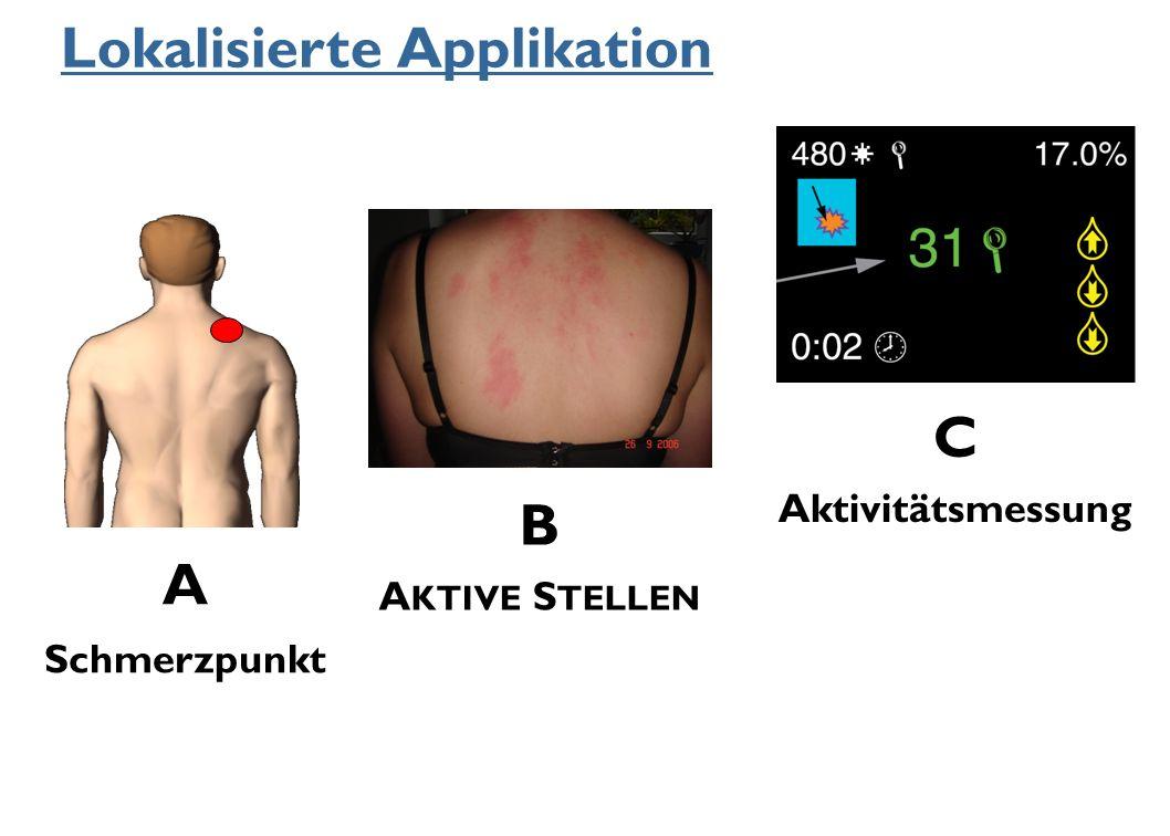 Lokalisierte Applikation A Schmerzpunkt B A KTIVE S TELLEN C Aktivitätsmessung