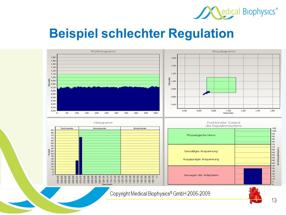 13 Copyright Medical Biophysics ® GmbH 2006-2009 Beispiel schlechter Regulation