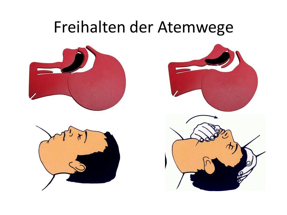 Freihalten der Atemwege