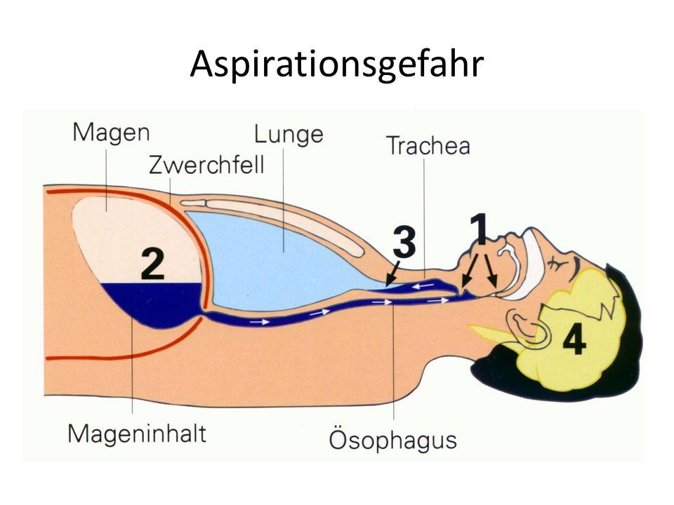 Gefahr der Aspiration von Mageninhalt Durch Beutelbeatmung Druckerhöhung im Magen Mageninhalt fließt zurück in den Mund-Rachenraum Dadurch Gefahr der Anatmung, bzw.