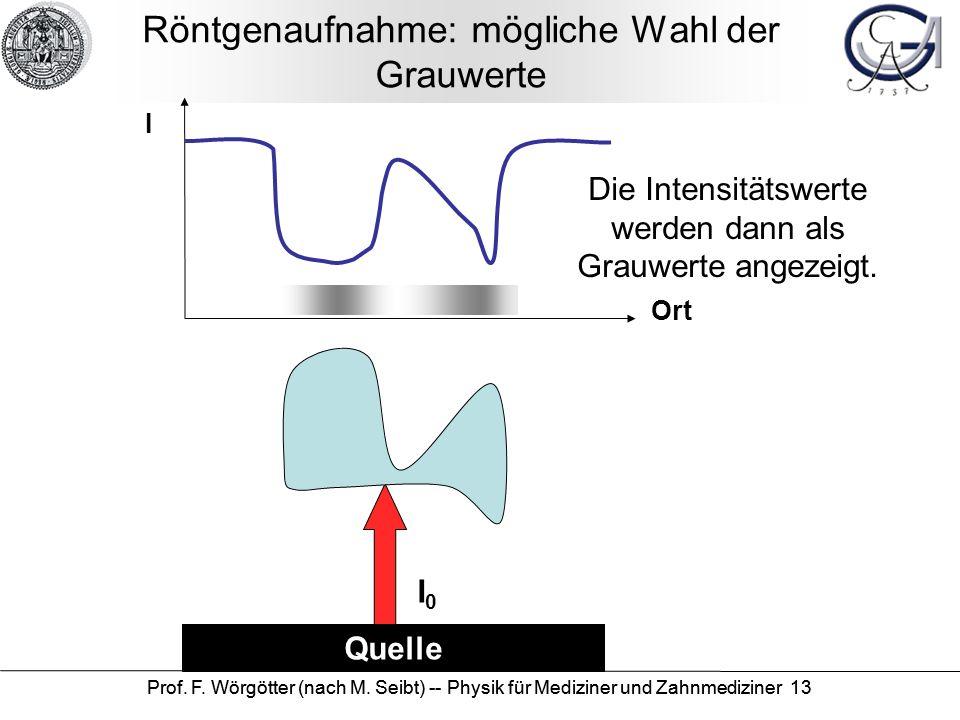 Prof. F. Wörgötter (nach M. Seibt) -- Physik für Mediziner und Zahnmediziner 13 Röntgenaufnahme: mögliche Wahl der Grauwerte Quelle I Ort I0I0 Die Int