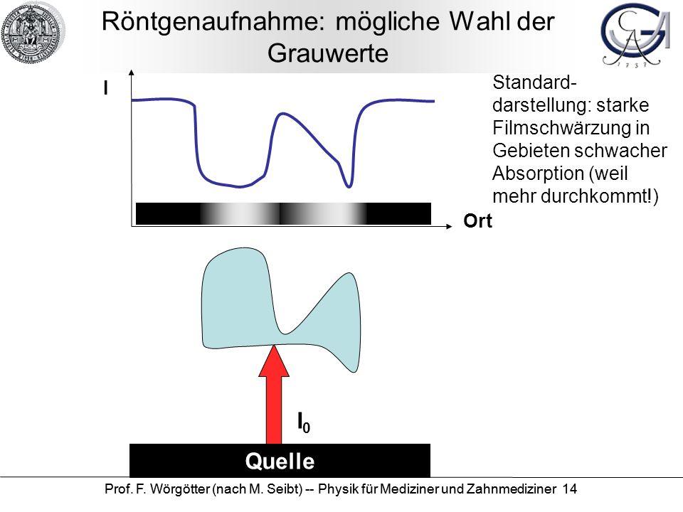 Prof. F. Wörgötter (nach M. Seibt) -- Physik für Mediziner und Zahnmediziner 14 Röntgenaufnahme: mögliche Wahl der Grauwerte Quelle I Ort I0I0 Standar