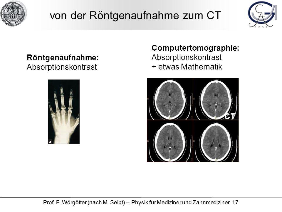 Prof. F. Wörgötter (nach M. Seibt) -- Physik für Mediziner und Zahnmediziner 17 von der Röntgenaufnahme zum CT CT Röntgenaufnahme: Absorptionskontrast