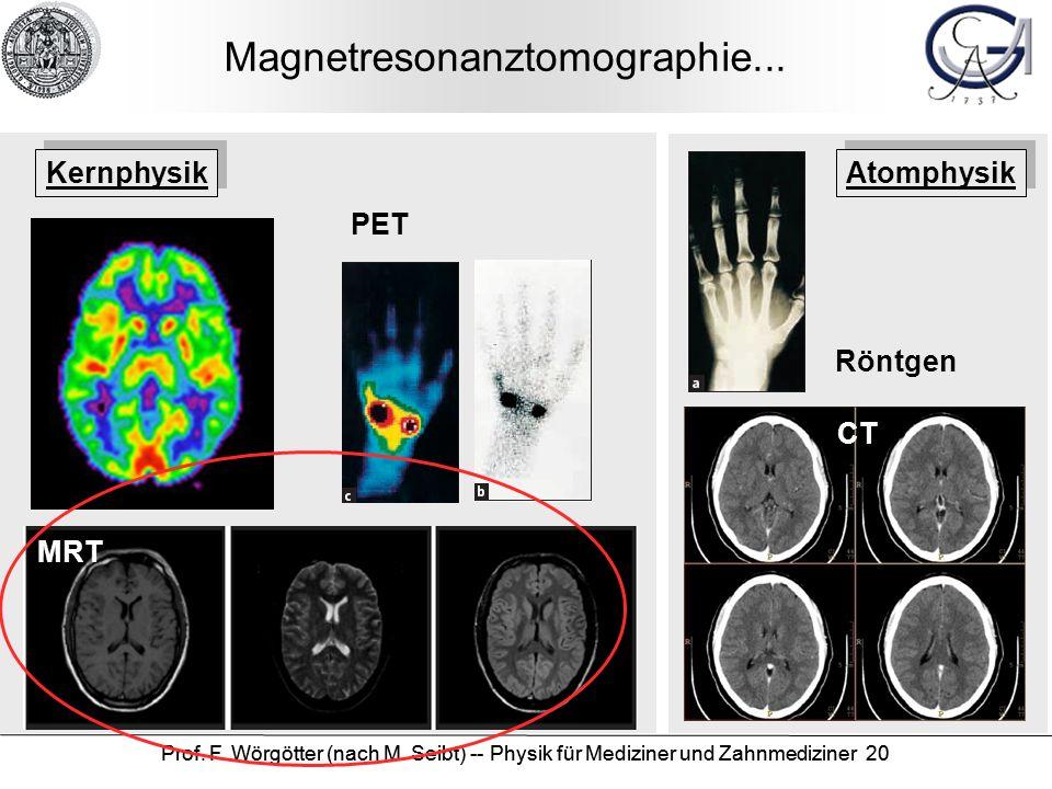 Prof. F. Wörgötter (nach M. Seibt) -- Physik für Mediziner und Zahnmediziner 20 Magnetresonanztomographie... Röntgen CT PET MRT Kernphysik Atomphysik