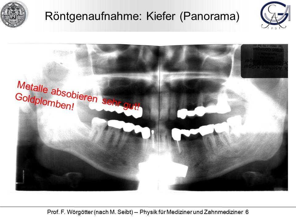Prof. F. Wörgötter (nach M. Seibt) -- Physik für Mediziner und Zahnmediziner 6 Röntgenaufnahme: Kiefer (Panorama) Metalle absobieren sehr gut! Goldplo