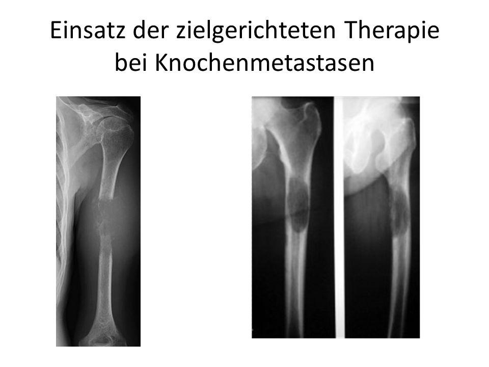 Einsatz der zielgerichteten Therapie bei Knochenmetastasen