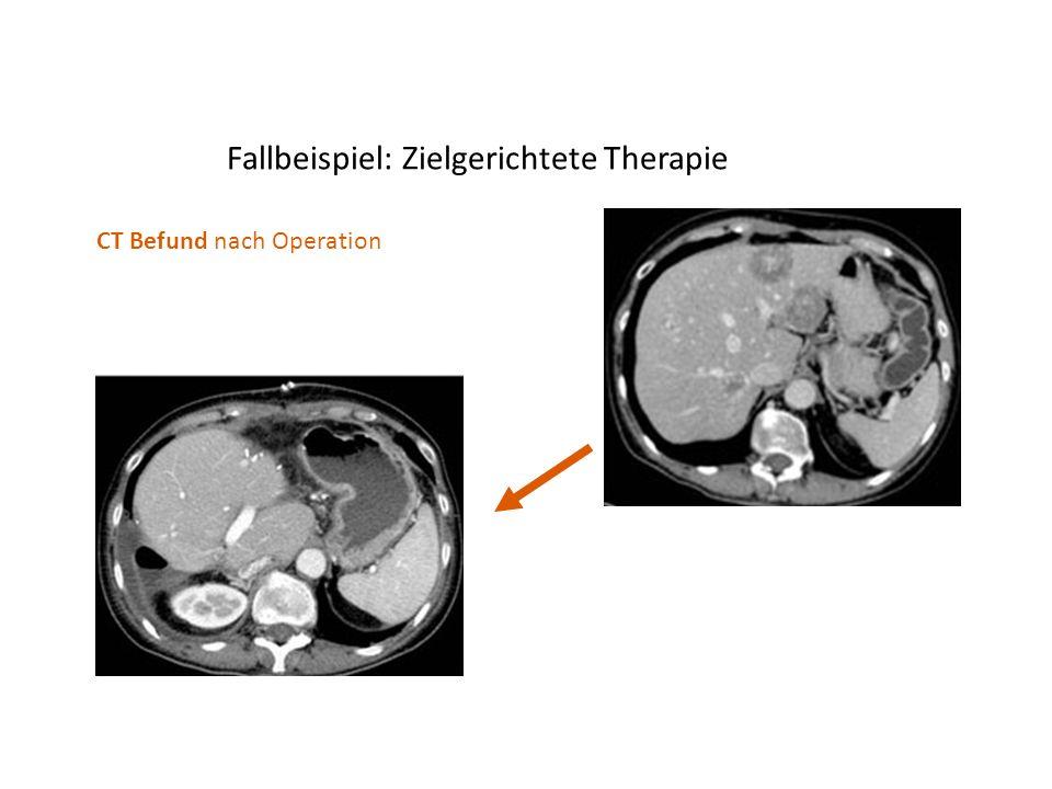 Fallbeispiel: Zielgerichtete Therapie CT Befund nach Operation