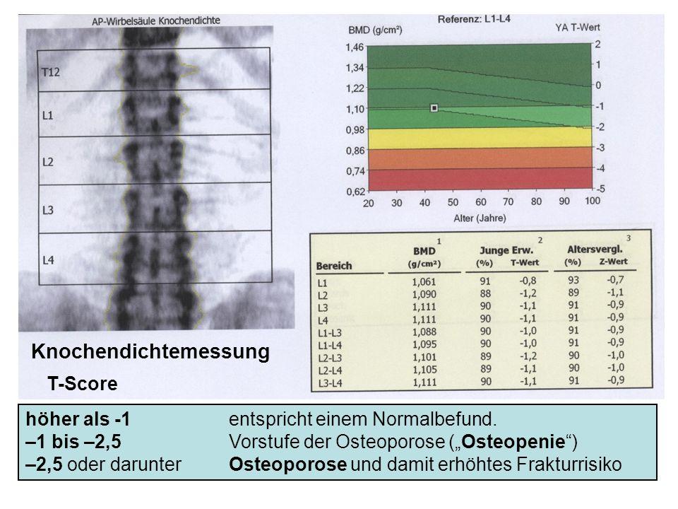 höher als -1 entspricht einem Normalbefund. –1 bis –2,5 Vorstufe der Osteoporose (Osteopenie) –2,5 oder darunter Osteoporose und damit erhöhtes Fraktu