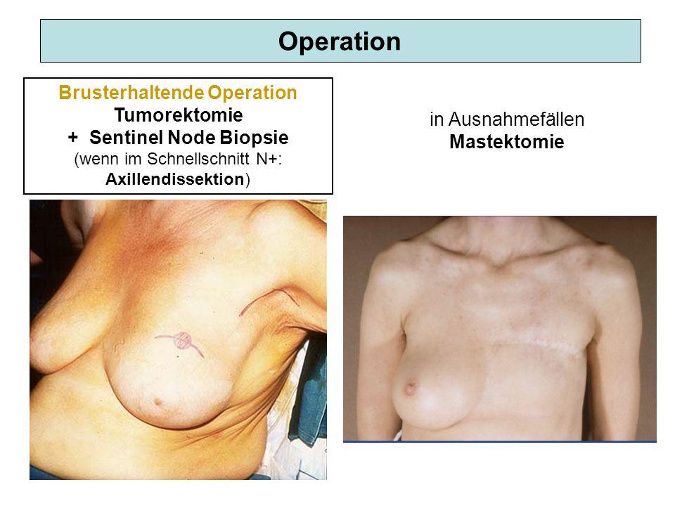 Operation Brusterhaltende Operation Tumorektomie + Sentinel Node Biopsie (wenn im Schnellschnitt N+: Axillendissektion) in Ausnahmefällen Mastektomie