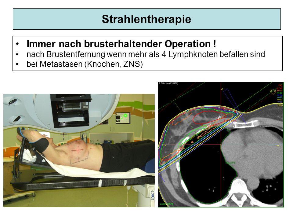 Strahlentherapie Immer nach brusterhaltender Operation ! nach Brustentfernung wenn mehr als 4 Lymphknoten befallen sind bei Metastasen (Knochen, ZNS)