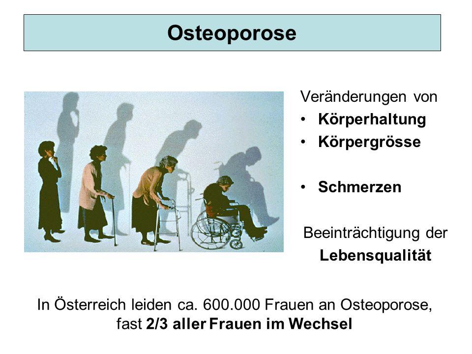 Osteoporose Veränderungen von Körperhaltung Körpergrösse Schmerzen Beeinträchtigung der Lebensqualität In Österreich leiden ca. 600.000 Frauen an Oste