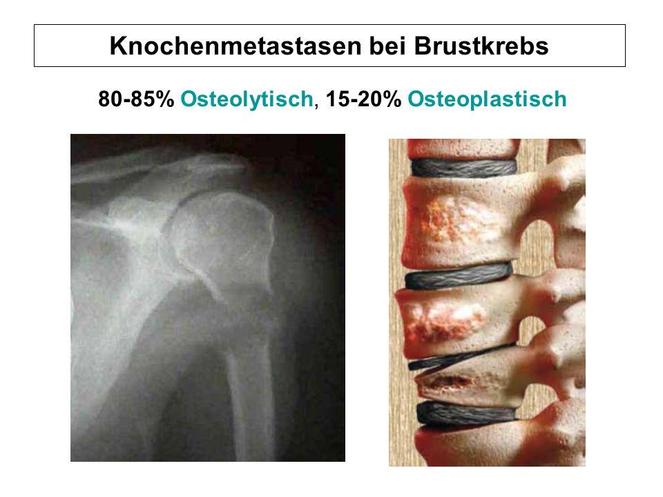 Knochenmetastasen bei Brustkrebs 80-85% Osteolytisch, 15-20% Osteoplastisch