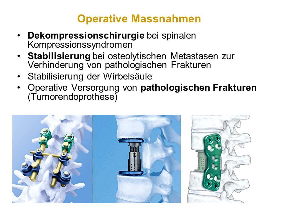 Operative Massnahmen Dekompressionschirurgie bei spinalen Kompressionssyndromen Stabilisierung bei osteolytischen Metastasen zur Verhinderung von path