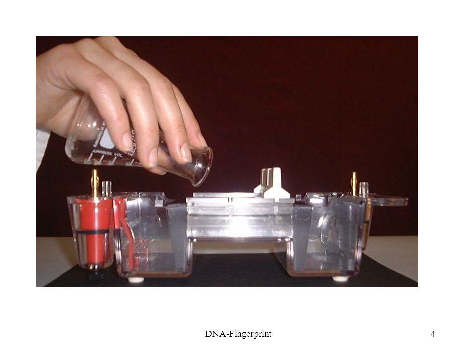 DNA-Fingerprint15 5. Färben des Gels