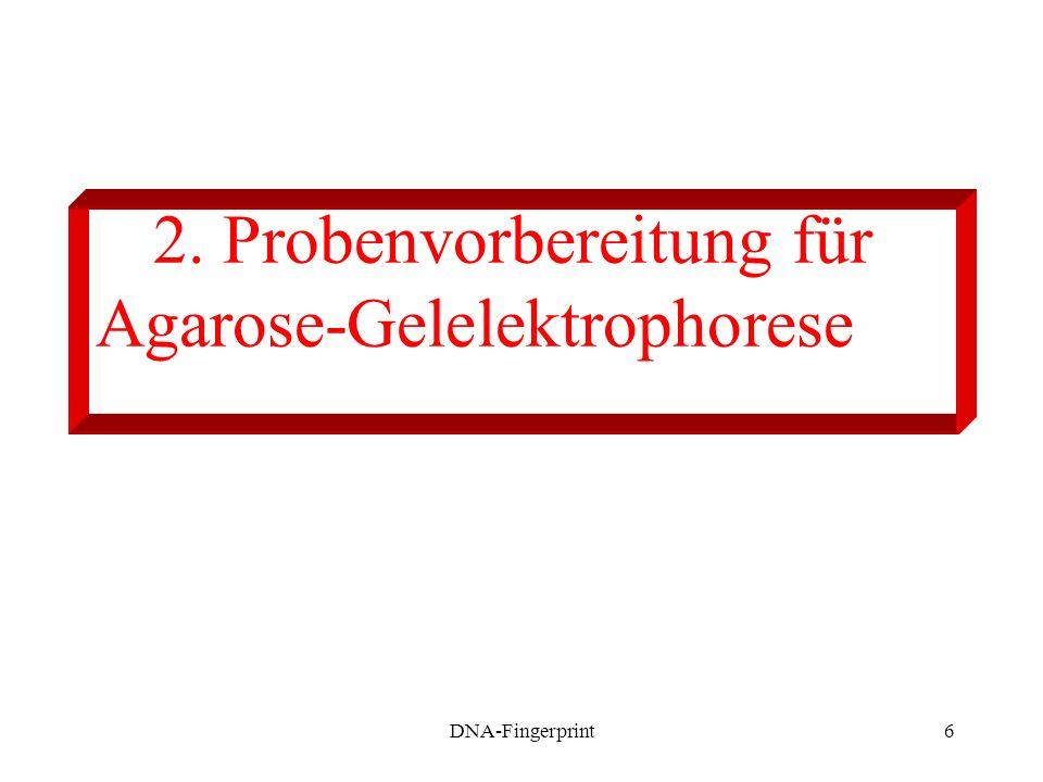 DNA-Fingerprint6 2. Probenvorbereitung für Agarose-Gelelektrophorese