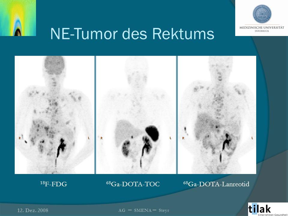 68 Ga-DOTA-TOC-PET vor und nach der Radionuklidtherapie 46 Patienten mit NET wurden vor und nach der RPPT mittels 68 Ga-DOTA-TOC PET und CT untersucht 68 Ga-DOTA-TOC PET ist hilfreich im frühzeitigen Nachweis eines Therapieansprechens bzw.