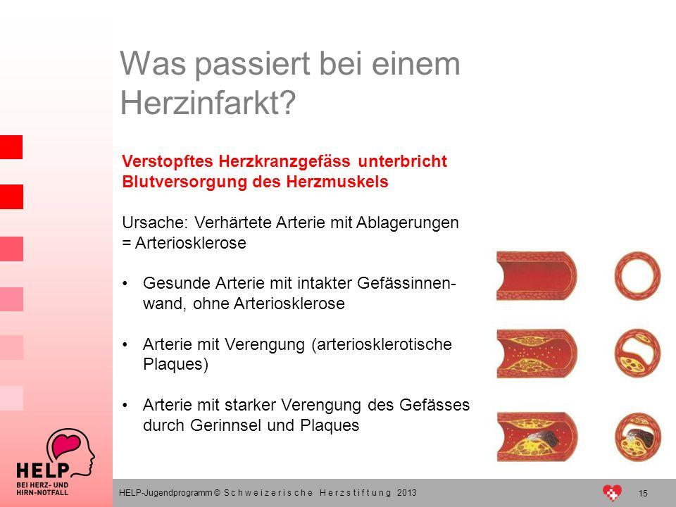 Verstopftes Herzkranzgefäss unterbricht Blutversorgung des Herzmuskels Ursache: Verhärtete Arterie mit Ablagerungen = Arteriosklerose Gesunde Arterie
