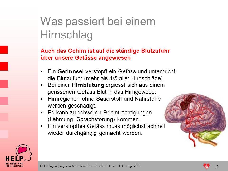 18 HELP-Jugendprogramm © S c h w e i z e r i s c h e H e r z s t i f t u n g 2013 Was passiert bei einem Hirnschlag Auch das Gehirn ist auf die ständi
