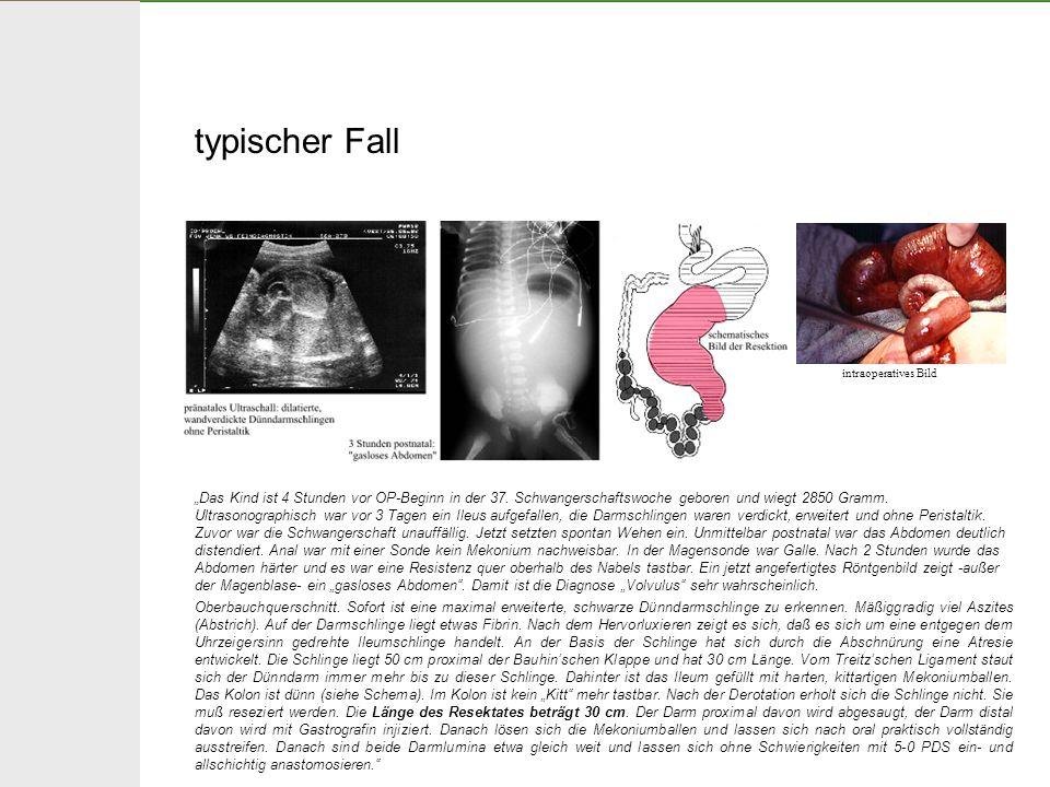 typischer Fall Das Kind ist 4 Stunden vor OP-Beginn in der 37. Schwangerschaftswoche geboren und wiegt 2850 Gramm. Ultrasonographisch war vor 3 Tagen