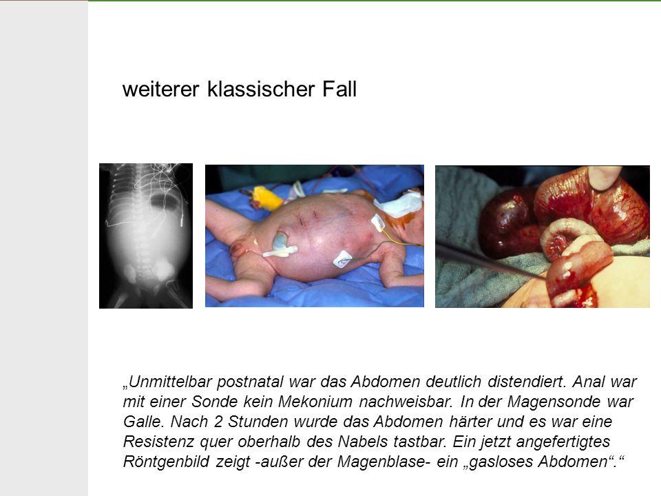 weiterer klassischer Fall Unmittelbar postnatal war das Abdomen deutlich distendiert. Anal war mit einer Sonde kein Mekonium nachweisbar. In der Magen