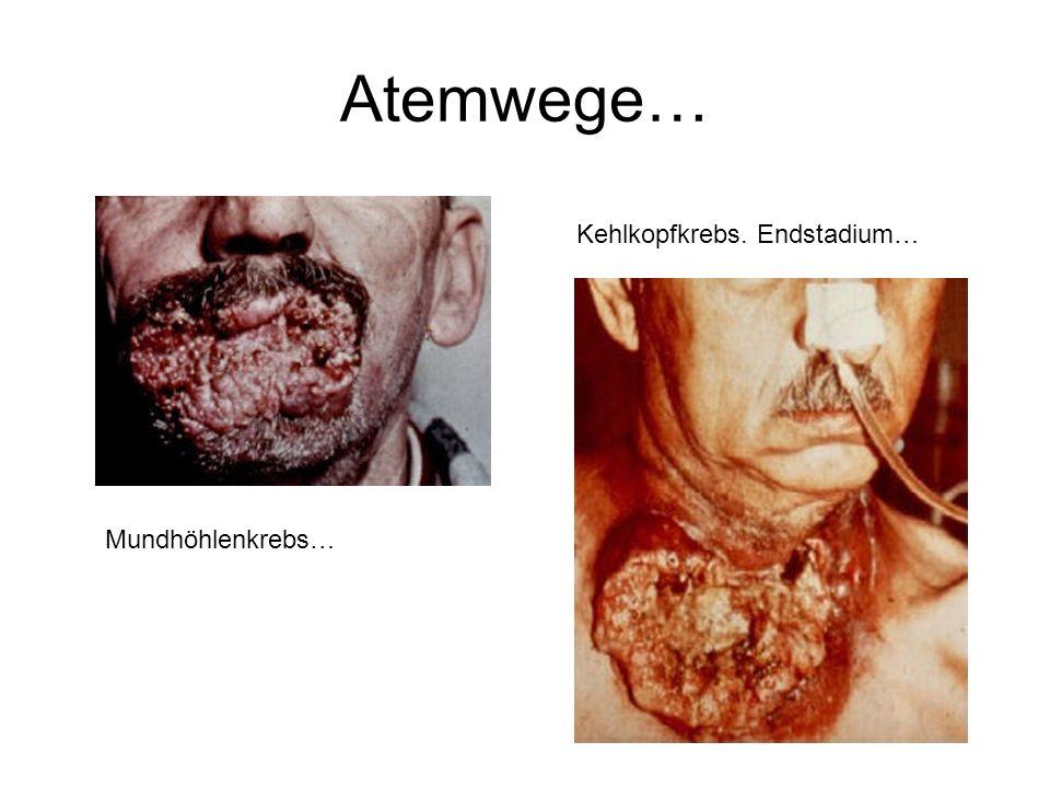 Atemwege… Kehlkopfkrebs. Endstadium… Mundhöhlenkrebs…