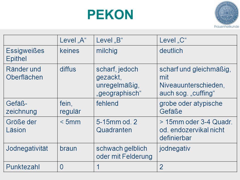 PEKON Level ALevel BLevel C Essigweißes Epithel keinesmilchigdeutlich Ränder und Oberflächen diffusscharf, jedoch gezackt, unregelmäßig, geographisch scharf und gleichmäßig, mit Niveauunterschieden, auch sog.