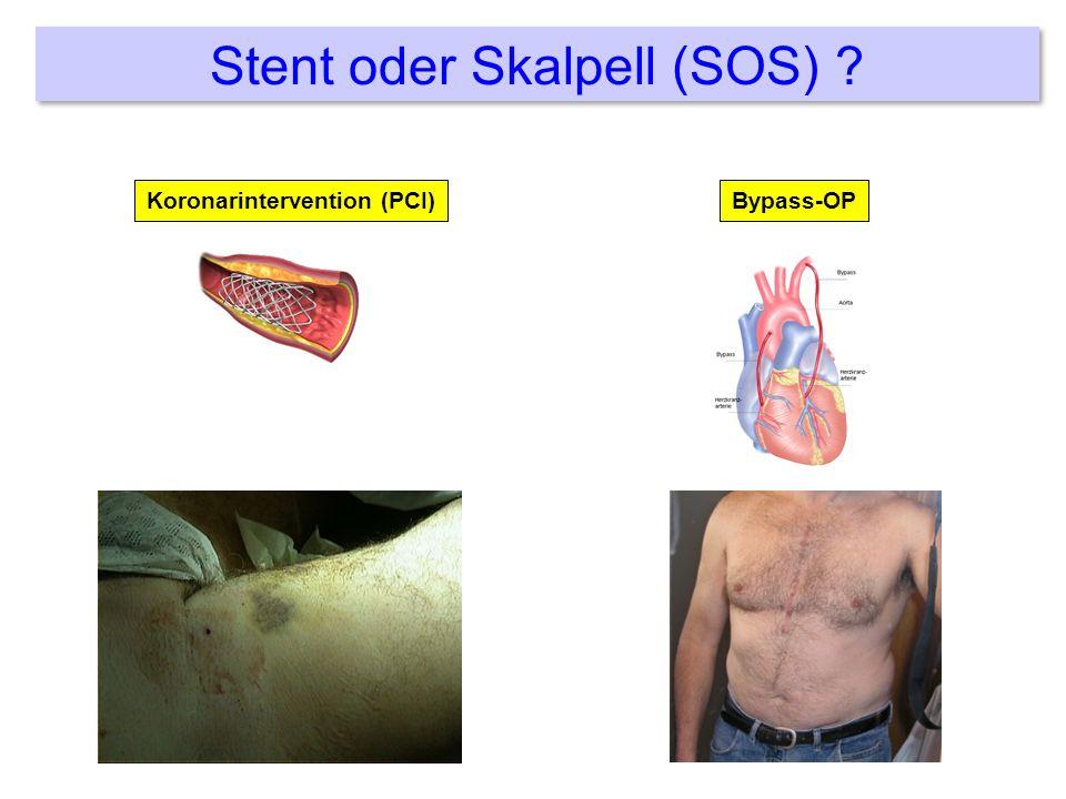 Stent oder Skalpell (SOS) ? Koronarintervention (PCI)Bypass-OP