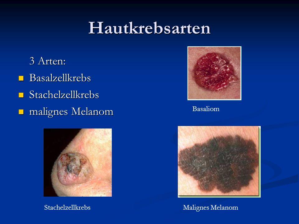 Hautkrebsarten 3 Arten: Basalzellkrebs Basalzellkrebs Stachelzellkrebs Stachelzellkrebs malignes Melanom malignes Melanom Basaliom Malignes MelanomSta