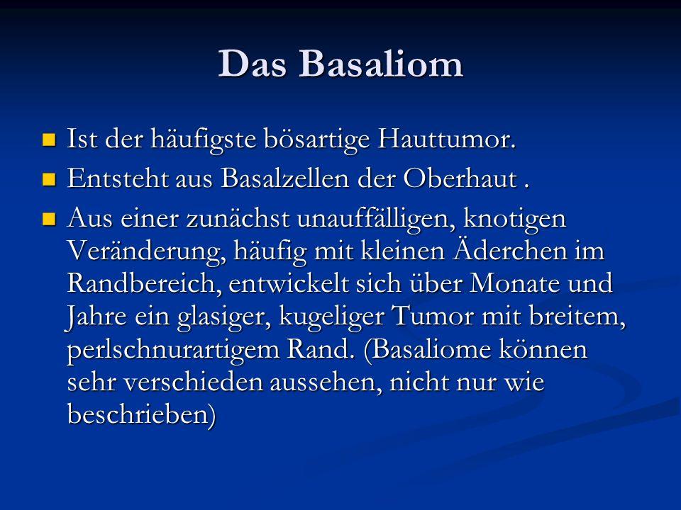 Das Basaliom Ist der häufigste bösartige Hauttumor. Ist der häufigste bösartige Hauttumor. Entsteht aus Basalzellen der Oberhaut. Entsteht aus Basalze