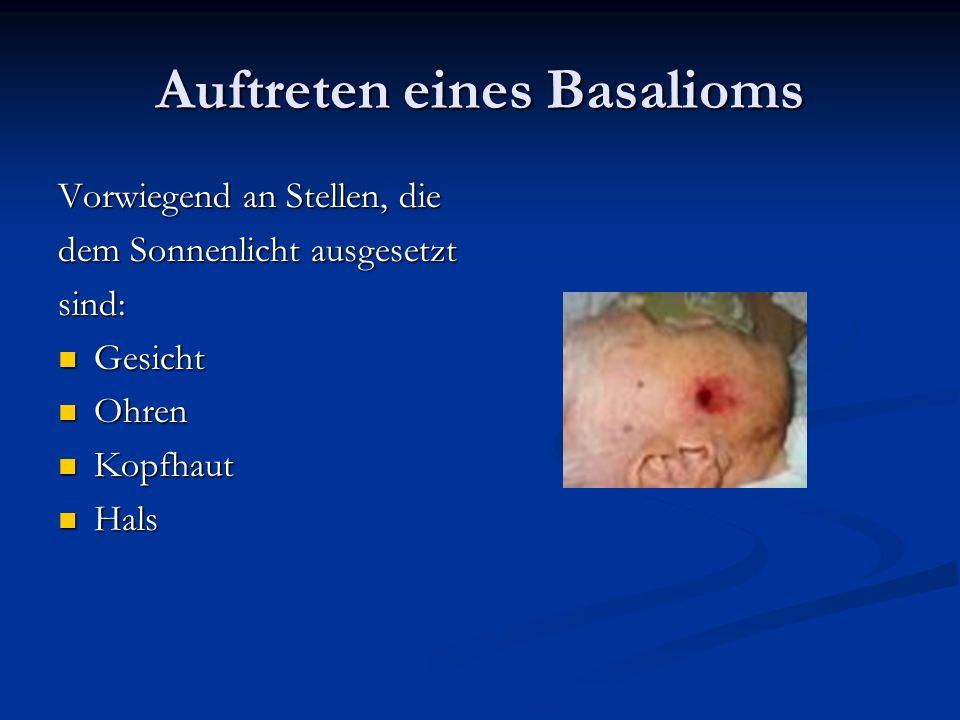 Auftreten eines Basalioms Vorwiegend an Stellen, die dem Sonnenlicht ausgesetzt sind: Gesicht Gesicht Ohren Ohren Kopfhaut Kopfhaut Hals Hals