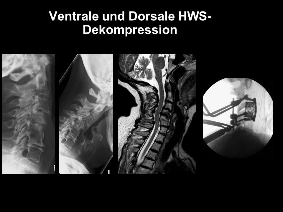 Ventrale und Dorsale HWS- Dekompression