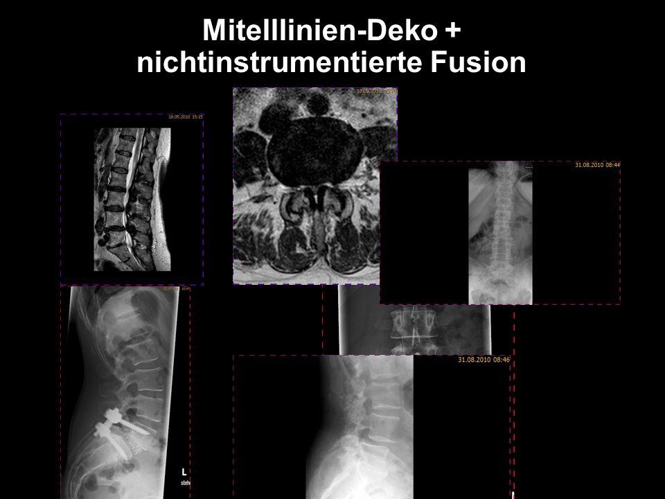 Mitelllinien-Deko + nichtinstrumentierte Fusion