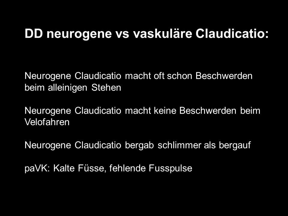DD neurogene vs vaskuläre Claudicatio: Neurogene Claudicatio macht oft schon Beschwerden beim alleinigen Stehen Neurogene Claudicatio macht keine Beschwerden beim Velofahren Neurogene Claudicatio bergab schlimmer als bergauf paVK: Kalte Füsse, fehlende Fusspulse