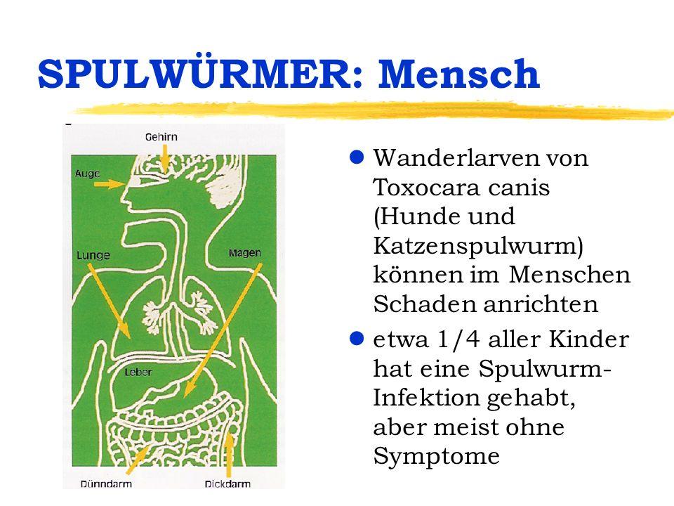 SPULWÜRMER: Krankheit lMensch als Zwischenwirt: Symptome je nach Parasitenmenge und befallenem Organ: lwenig, schnell abgekapselt: keine Probleme lLeber: Bauchweh, Übelkeit...