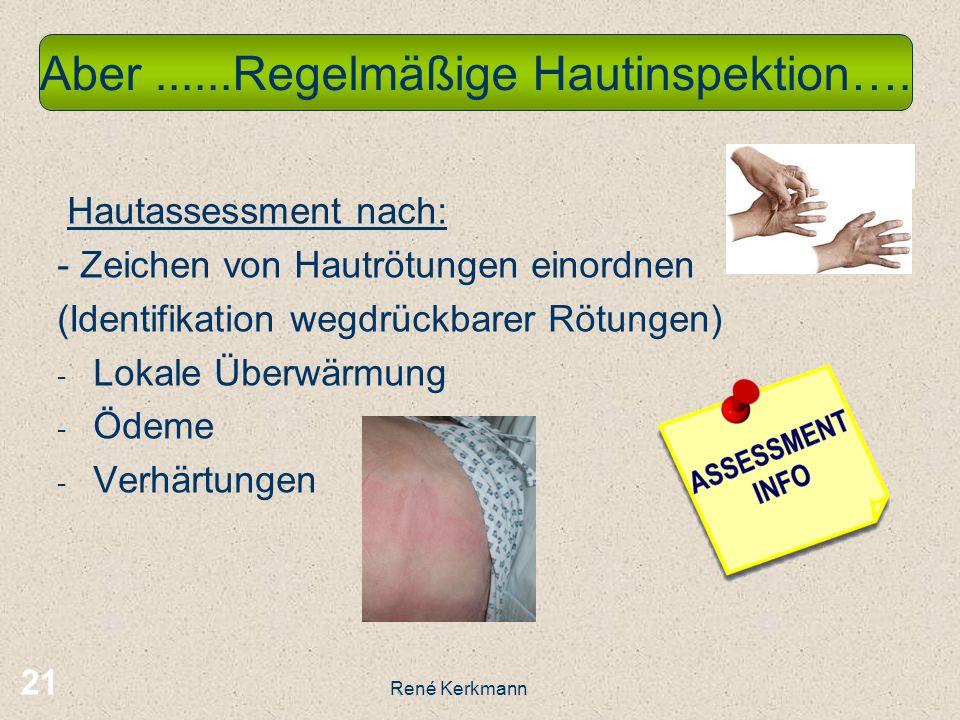 21 Hautassessment nach: - Zeichen von Hautrötungen einordnen (Identifikation wegdrückbarer Rötungen) - Lokale Überwärmung - Ödeme - Verhärtungen Aber......Regelmäßige Hautinspektion….