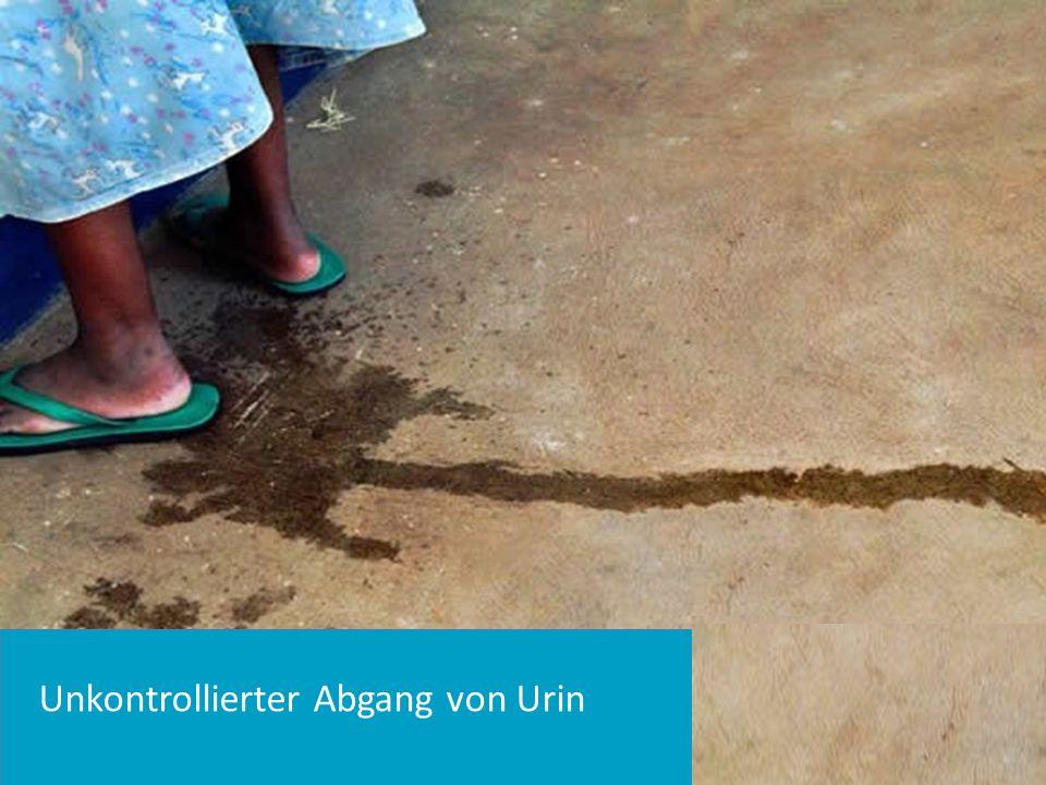 Unkontrollierter Abgang von Urin