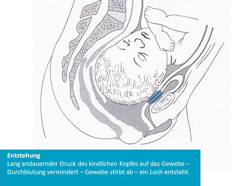 Entstehung Lang andauernder Druck des kindlichen Kopfes auf das Gewebe – Durchblutung vermindert – Gewebe stirbt ab – ein Loch entsteht.
