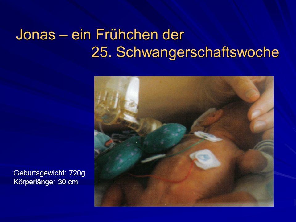 Jonas – ein Frühchen der 25. Schwangerschaftswoche Geburtsgewicht: 720g Körperlänge: 30 cm
