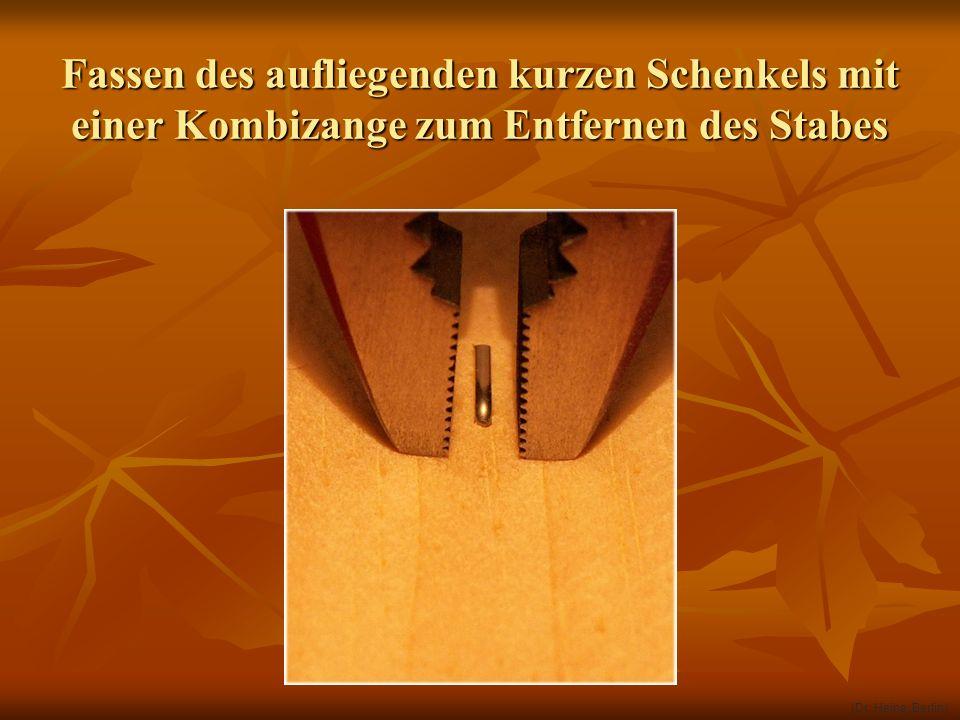 Fassen des aufliegenden kurzen Schenkels mit einer Kombizange zum Entfernen des Stabes (Dr. Heine, Berlin)